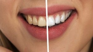 Tips On How To Easily Get Whiter Teeth